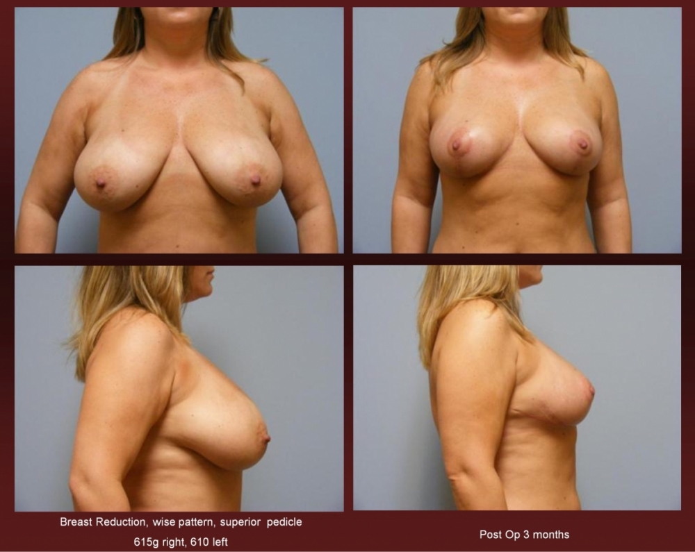 Breast Reduction at Georgetown Plastic Surgery