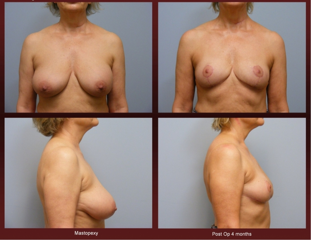 Breast Lift at Georgetown Plastic Surgery