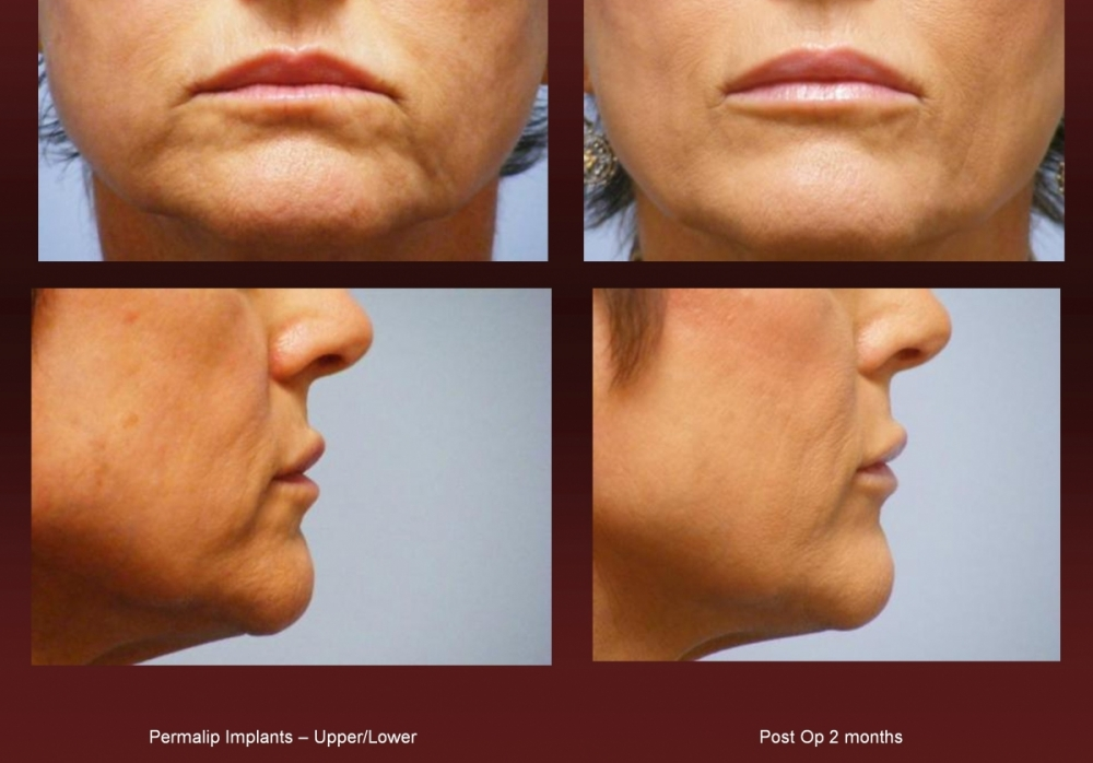 Lip enhancement at Georgetown Plastic Surgery