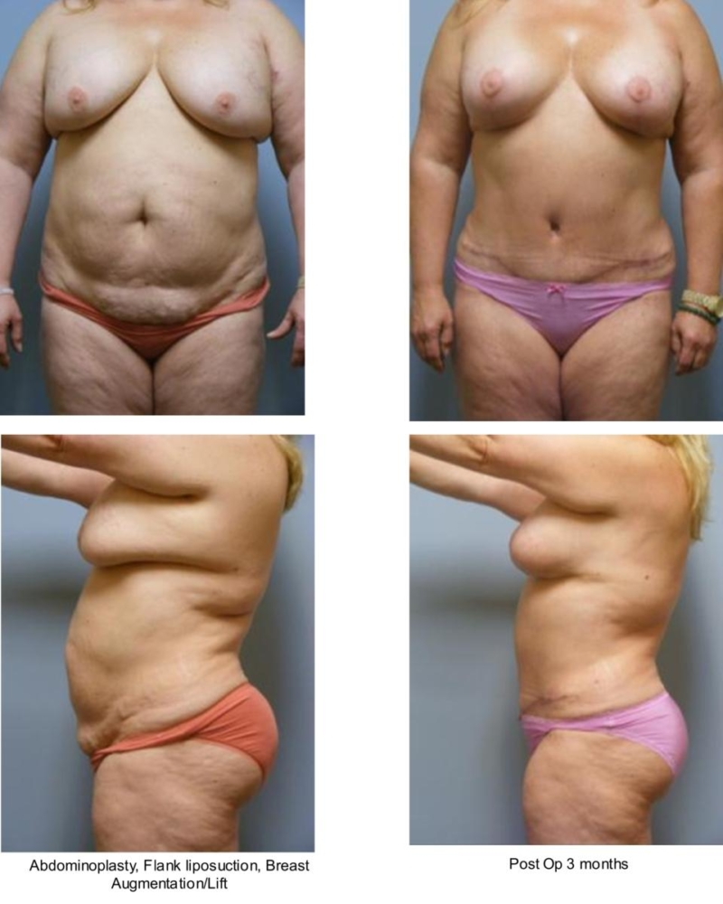 Abdomniplasty at Georgetown Plastic Surgery